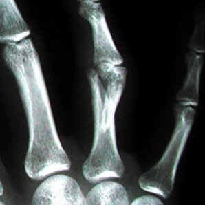 x-ray of a hand showing a Fracture of a ring finger proximal phalanx