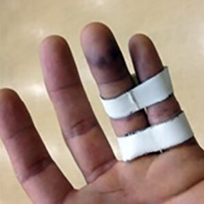 photograph showing a hand with buddy strapping around the last two fingers which look bruised